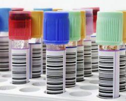 interpretar-resultados-analisis-sangre